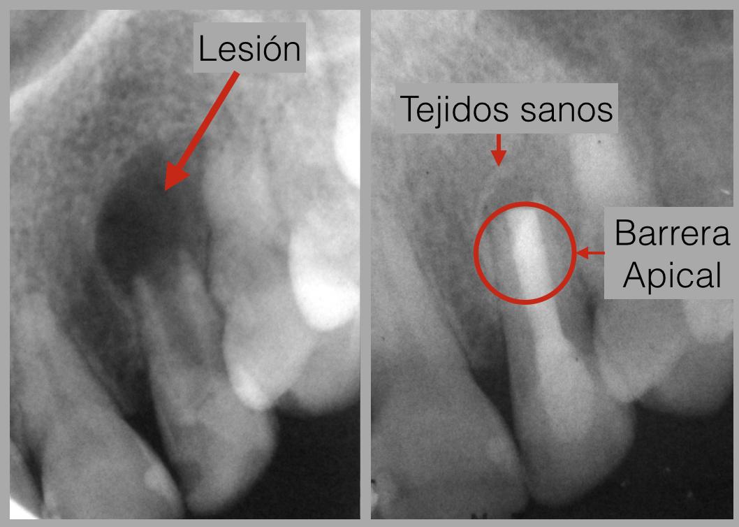 Barrera Apical y curación de los tejidos que rodean la raíz del diente.