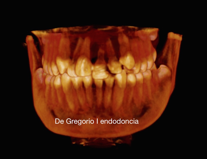 CBCT en Traumatologia Dental