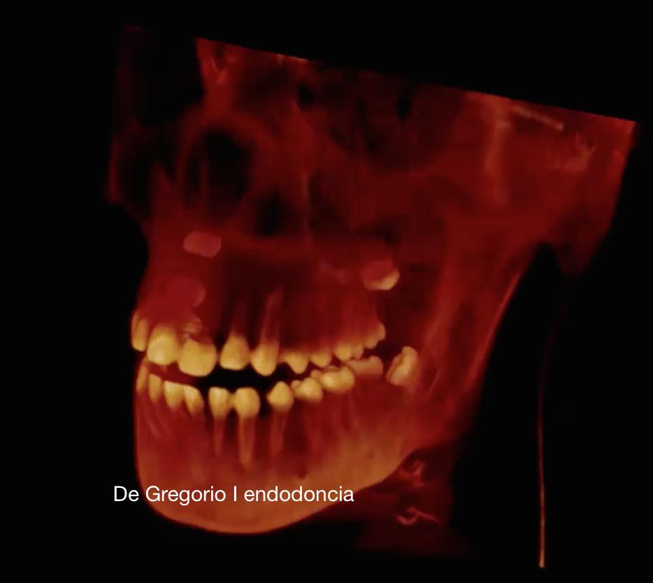 Diagnóstico en 3D