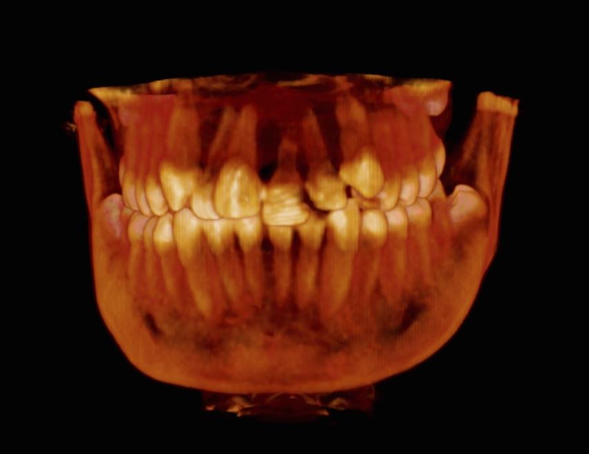 CBCT en Traumatología Dental