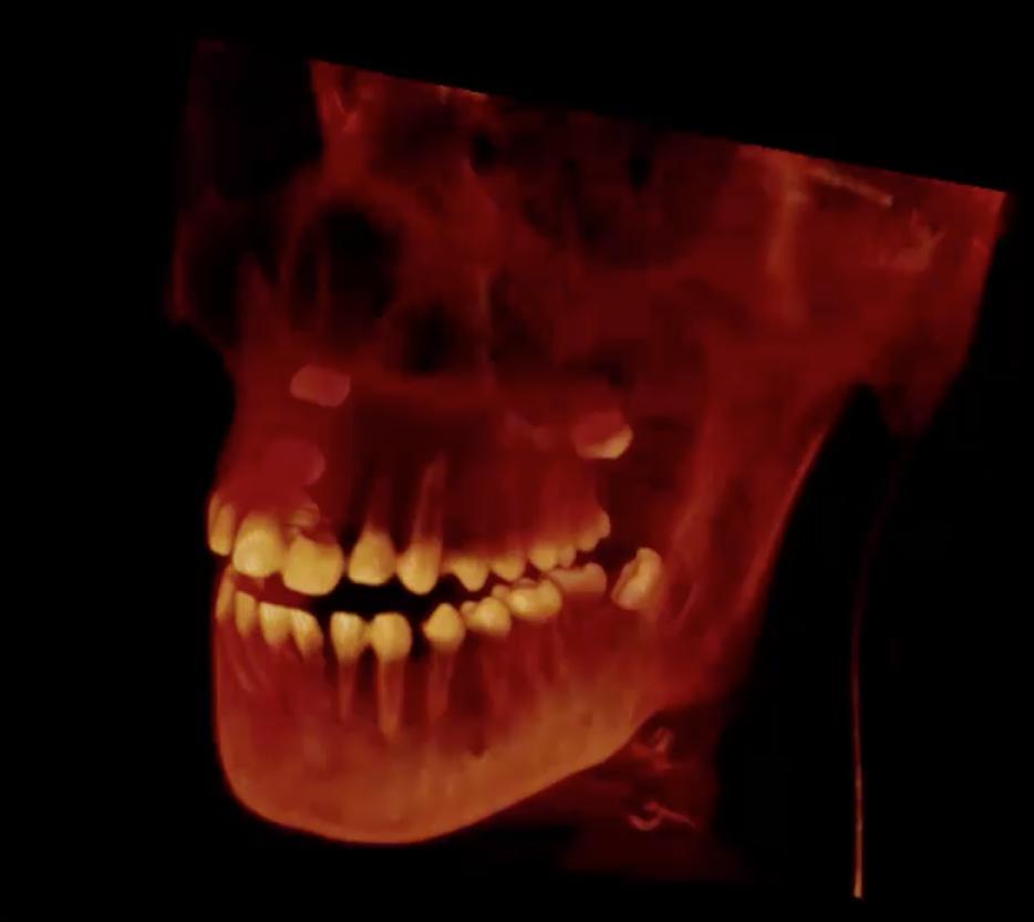 Diagnóstico 3D mediante CBCT